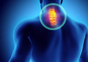Zwyrodnienie kręgosłupa szyjnego – przyczyny, objawy i rehabilitacja