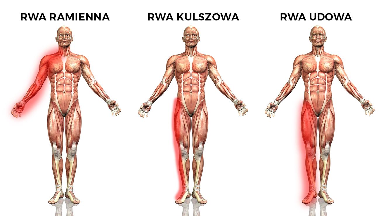 Rwa udowa - leczenie i rehabilitacja