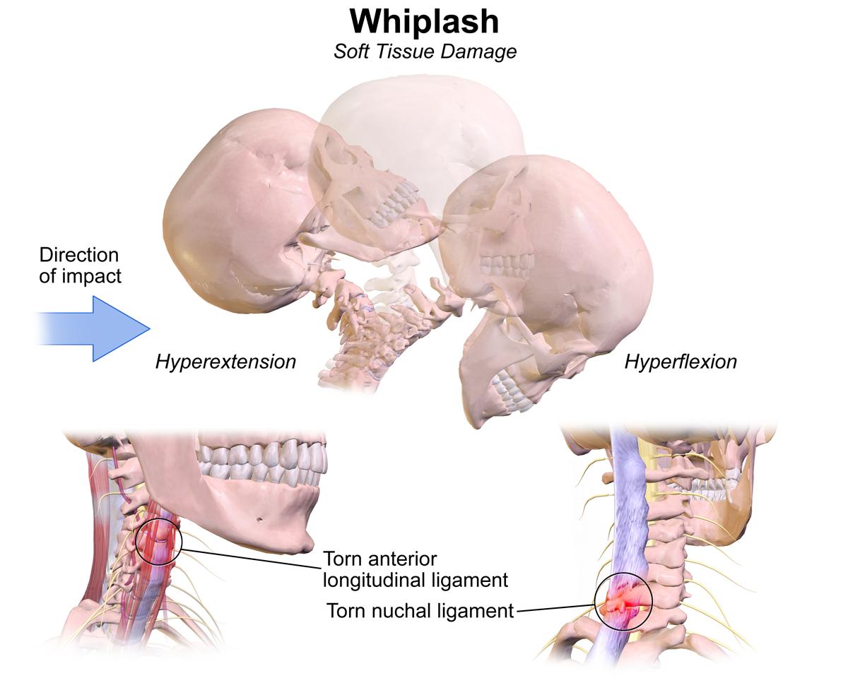 Uraz biczowy kręgosłupa - objawy