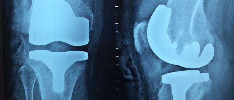Endoproteza kolana - Powikłania po zabiegu