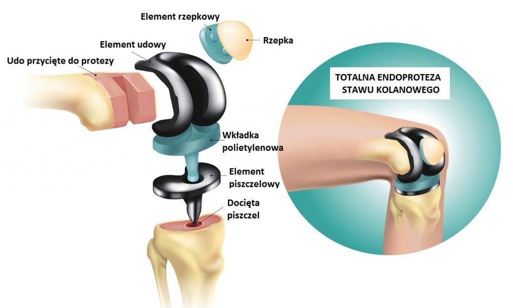 Endoproteza kolana - zabieg endoprotezoplastyki