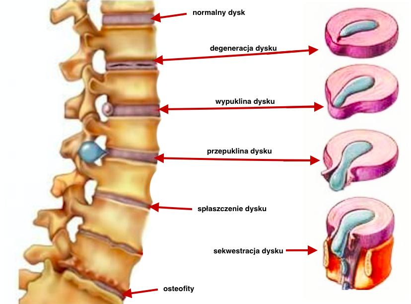 Rodzaje dyskopatii: szyjna, piersiowa, lędźwiowa