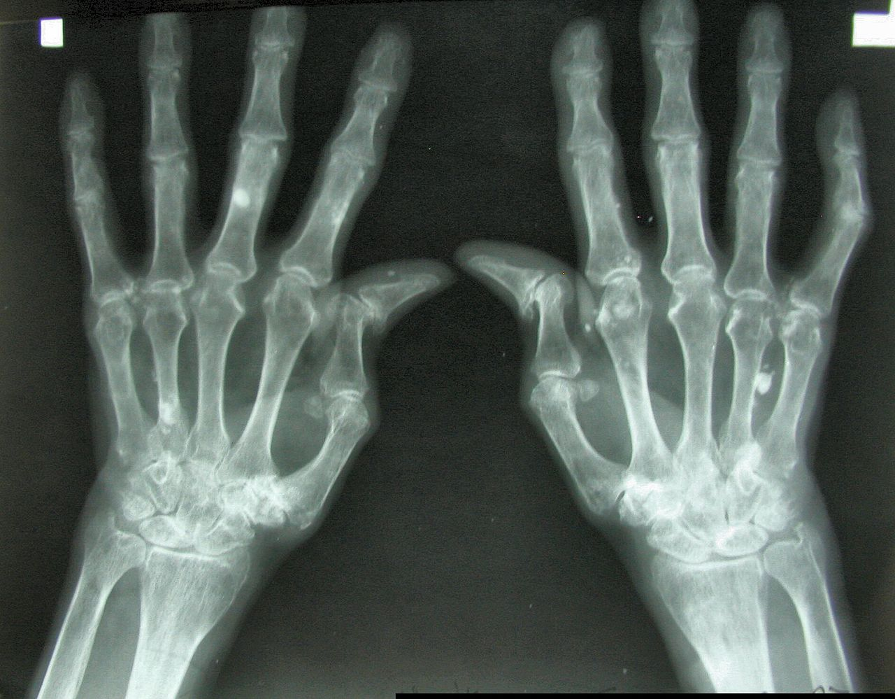 Reumatoidalne zapalenie stawów - przyczyny