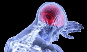 Stwardnienie rozsiane – przyczyny, objawy i rehabilitacja
